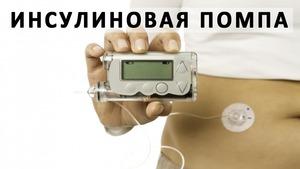 інсулінова помпа