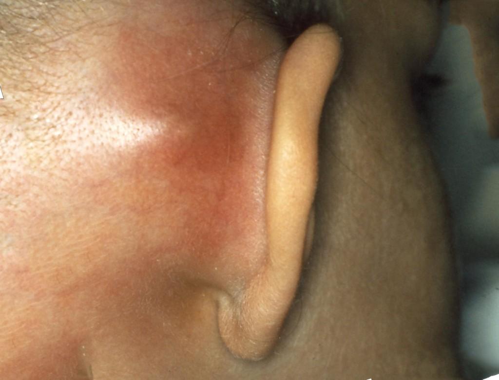 Деформация косточек среднего уха при удареы