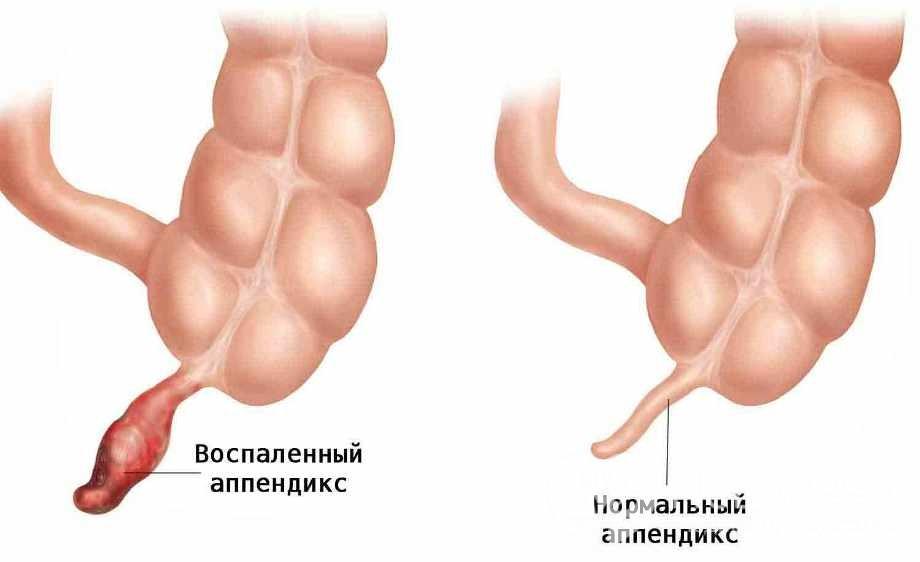 Гострий апендицит: симптоми і ознаки гострого апендициту
