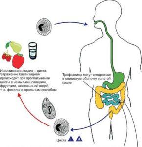 Балантидиаз: пути заражения и жизненный цикл, симптоматика заболевания, лабораторная диагностика, способы и схема лечения