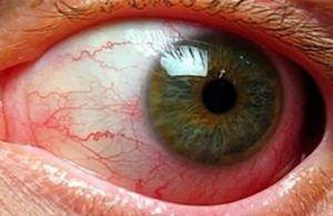 Диагностика гельминтозов у человека, выявление и диагностика глистов у человека