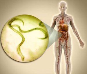 Гименолепидоз - карликовый цепень: жизненный цикл и условия распространения, симптомы и признаки, анализ на наличие карликового цепня