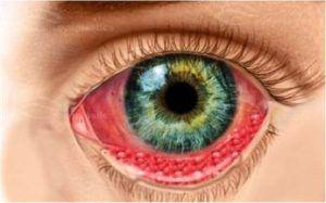 Хламидиоз глаз: причины, признаки и симптомы, лечение хламидиоза глазными каплями