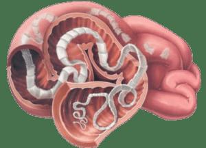 Как можно заразиться бычьим цепнем, пути передачи и способы попадания в организм человека, профилактика инфицирования