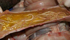 Как передаются глисты от человека к человеку b как можно заразиться глистами: пути заражения