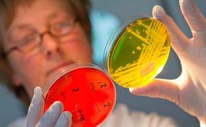 Какие анализы сдавать на паразитов: крови, развернутый анализ на глистов
