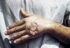 Профилактика лейшманиоза: лечение, меры предупреждения, как предотвратить лейшманиоз