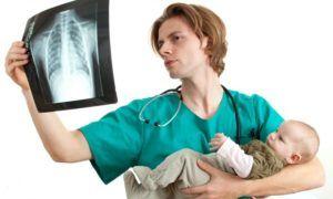 Симптомы и признаки хламидийной пневмонии у детей: рекомендации по лечению новорожденных малышей
