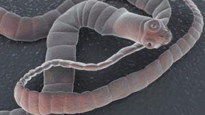 Солитер в организме человека: признаки и симптомы, как обнаружить и вывести из организма опасного паразита медикаментозными препаратами и народными средствами