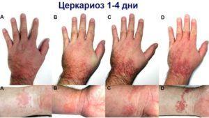 Сыпь при глистах: высыпания на коже, какие высыпания бывают при инвазии глистами