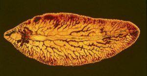 Виды глистов у человека, какие бывают глисты и разновидности гельминтов у человека