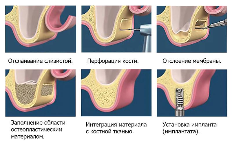 Этапы проведения синус-лифнига