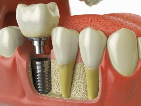 Зубная имплантация – приговор или альтернатива?