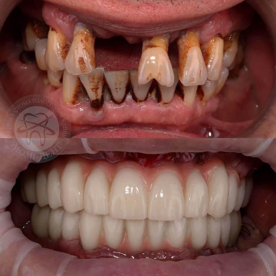 Как восстановить зубы?