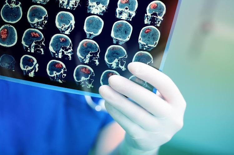 Как предотвратить повторный инсульт
